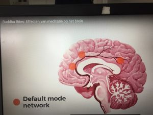 Default mode netwerk
